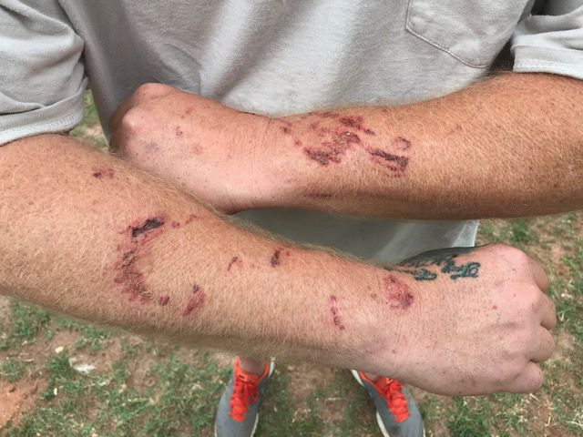 Injury Types Jerome O. Fjeld, PLLC